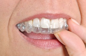 dentist in las cruces provides invisalign