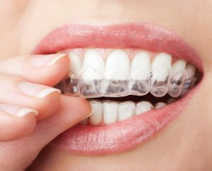 Fix your smile discreetly with Invisalign from your dentist in Las Cruces. Drs. Ramon and Natalie Ortiz are experts in this remarkable orthodontic system.