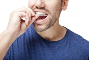 Get answers to your questions about Invisalign in Las Cruces.