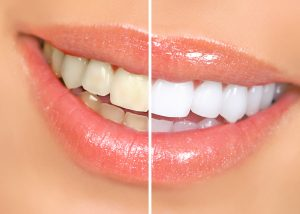 woman smiling before and after whitening
