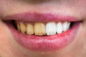Before and after teeth whitening at dentist in Las Cruces.