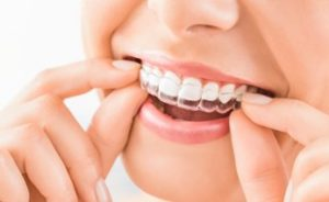 Woman putting an Invisalign tray on her top teeth