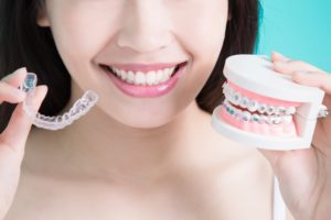 Dental models showing Invisalign VS. braces
